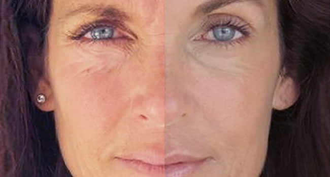 Facelift Surgery in Toronto