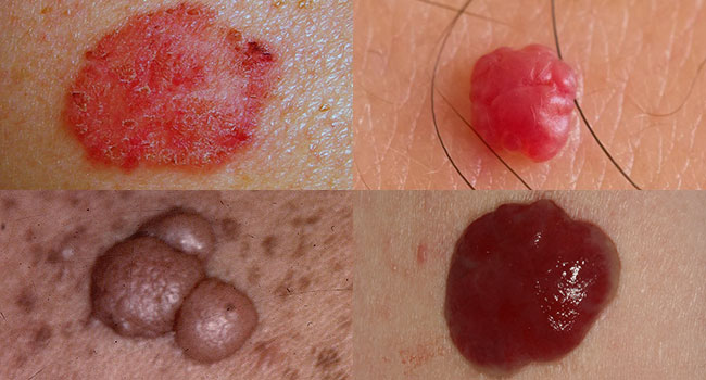 Benign Skin Lesion Surgery in Toronto